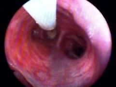 The interior of a dog's trachea as seen through a bronchoscope