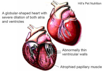 Illustration of heart showing Dilated cardiomyopathy