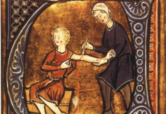A historical illustration of bloodletting
