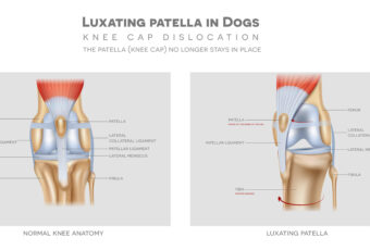 Luxating patella